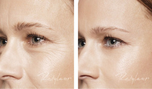 restylane-skin-boosters